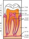 עבודת תזה רפואת שיניים באנגלית ENDODONTIC TREATMENT VERSUS IMPLANT D.M.D THESIS